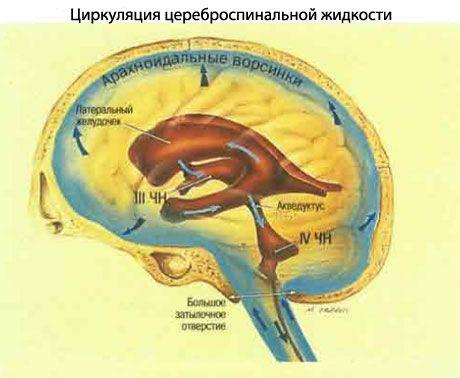 intrakranijinė hipertenzija ir hipertenzija hipertenzijos ir širdies nepakankamumo gydymas