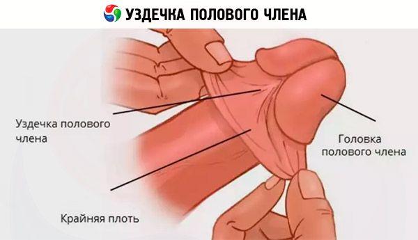Plastična kirurgija frenuloplastike penisa, frenulotomija